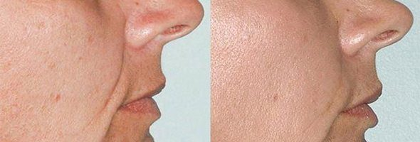 Injectable Fillers – Cheeks