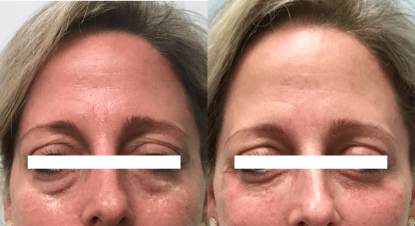 Injectable Filler - Eyes