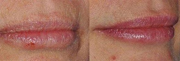 Injectable Fillers – Lips