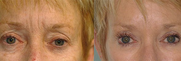 Injectable Fillers – Eyes