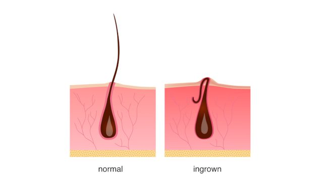 Ingrown Hairs: How to Treat Them Professionally to Prevent Infection